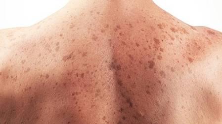 cancer-de-piel